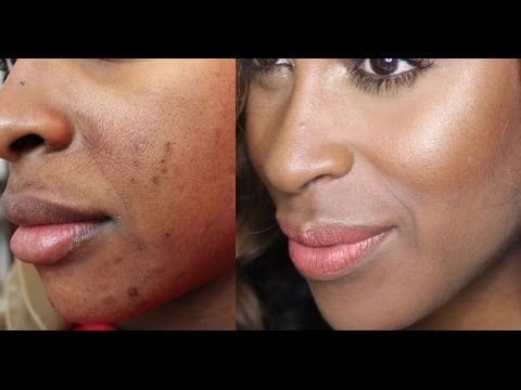 Stop Facial  Hair Serum - Blackskin.com Product for Black skin , Dark Marks , Acne on Black Skin. Hyper pigmentation