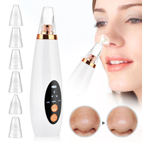 Blackhead Remover - Ibeauty By Halz