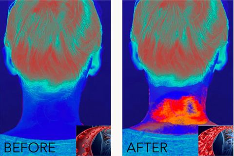 heatmap of before and after using pink remedy neck massager - Pink Remedy