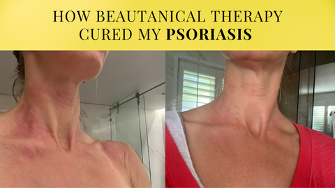 before-and-after-photo-of-psoriasas-treatment