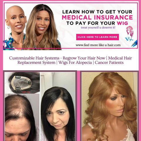 How To Have Your Wig Covered By Medical Insurance