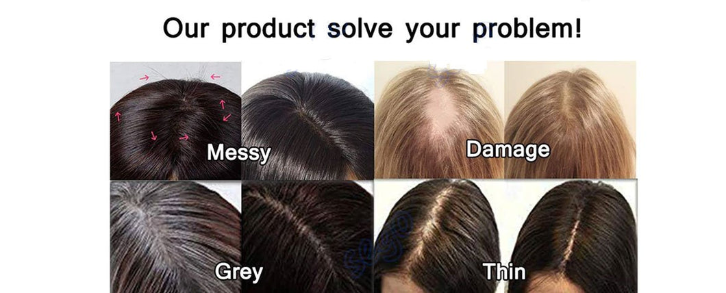 Hair Loss Solutions For Hair Replacement | Get A Free 1-on-1 Consultation