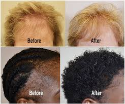 Hair Loss & Hair Replacement Solutions | Get A FREE 1-on-1 Consultation