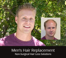 Load image into Gallery viewer, Hair Loss & Hair Replacement Solutions | Get A FREE 1-on-1 Consultation
