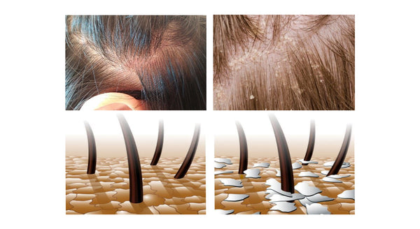 Troubled Dry Scalp