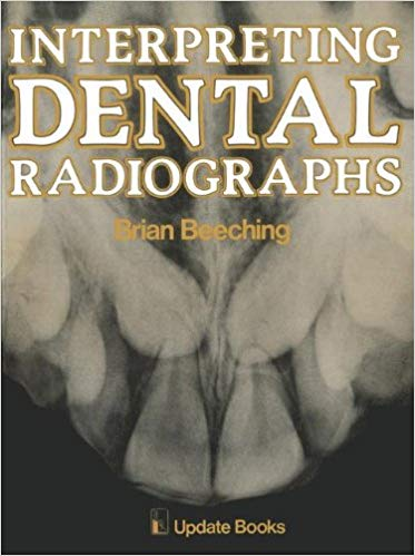 Interpreting Dental Radiographs by B.W. Beeching