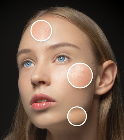 A woman with open pores and acne scars