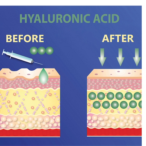 ReverseLife_BlogImage_HyaluronicAcidBefore&After