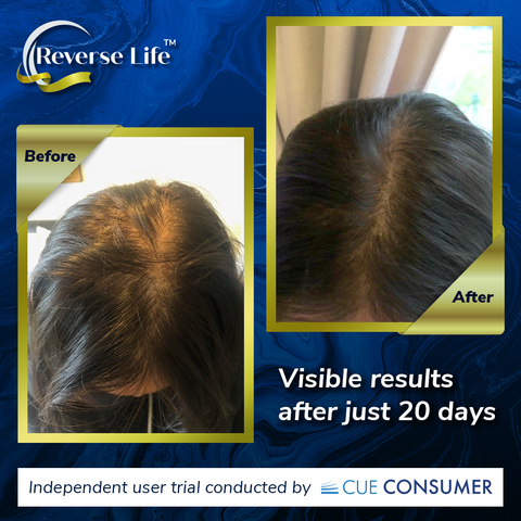 ReverseLive_BlogImage_CollagenBefore&After_HairGrowth