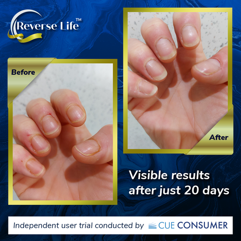 ReverseLife_BlogImage_CollagenBefore&After_NailStrength