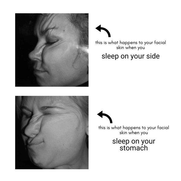 what causes sleep creases?