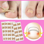5Pcs Nail Strips Anti-roll Free Glue Toe Inlay Nail Corrector - COOLCrown Store