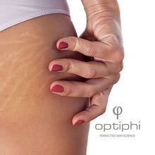 Load image into Gallery viewer, Optiphi Body Curve Scar Therapy - 100ml