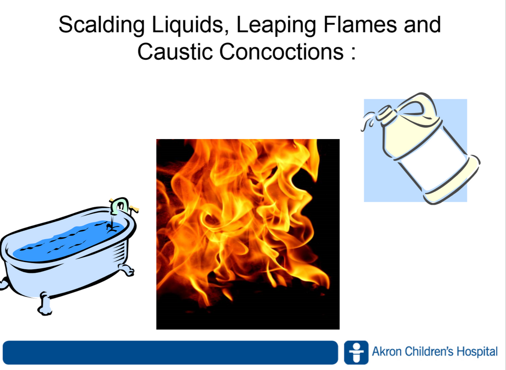 Scalding Liquids, Leaping Flames and Caustic Concoctions Webinar - Member Price