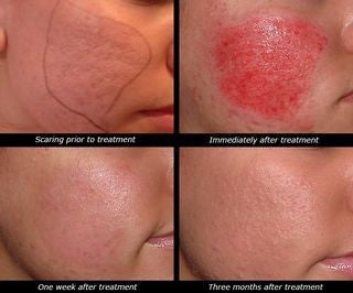 side effects of microneedling