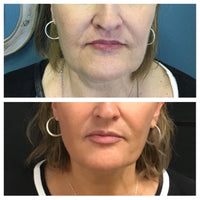 Kybella Double-Chin and Jowl Eliminator