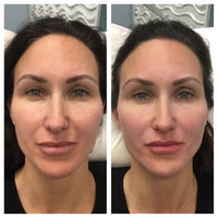 Vollure for Lower Face Restoration