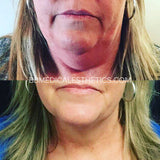 CoolSculpting Double Chin Eliminator (3)