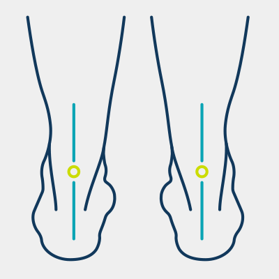 feet in normal alignment