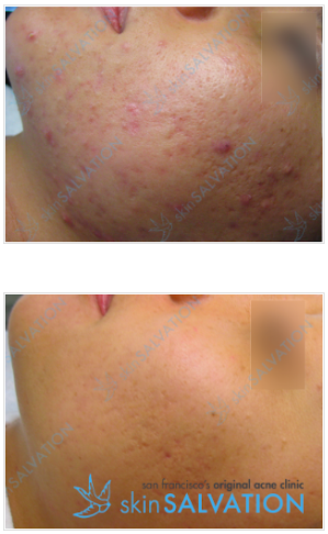 acne and pigmentation have cleared but textural scarring remains.