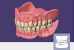 exocad - Full Denture Add On Module exocad by exocad- Unique Dental Supply Inc.