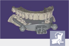 exocad - Jaw Motion Import Add On Module exocad by exocad- Unique Dental Supply Inc.