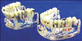 Study Model - M1 Study Models by META DENTAL- Unique Dental Supply Inc.
