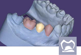exocad -Provisional Add On Module exocad by exocad- Unique Dental Supply Inc.