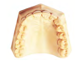 Stone for Models - Hydrocal Gypsum & Accessories by Metro Dent- Unique Dental Supply Inc.