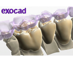 exocad - Dental CAD Software exocad by exocad- Unique Dental Supply Inc.