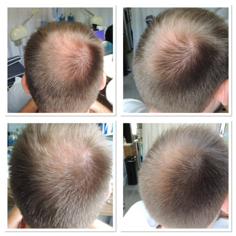 Tricopigmentation At Peter Joannou Male Grooming Brighton