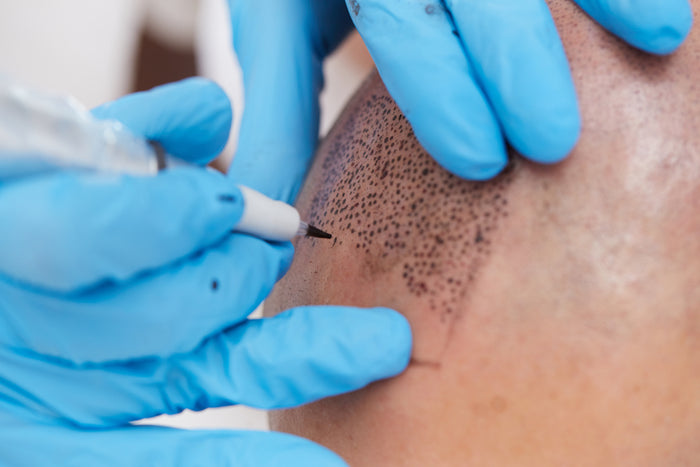 Tricopigmentation Procedure