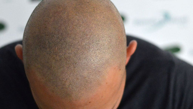 Tricopigmentation Shaved Head Effect