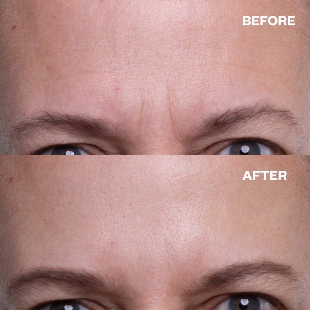 forehead wrinkles silicone Patches for wrinkles before and after results