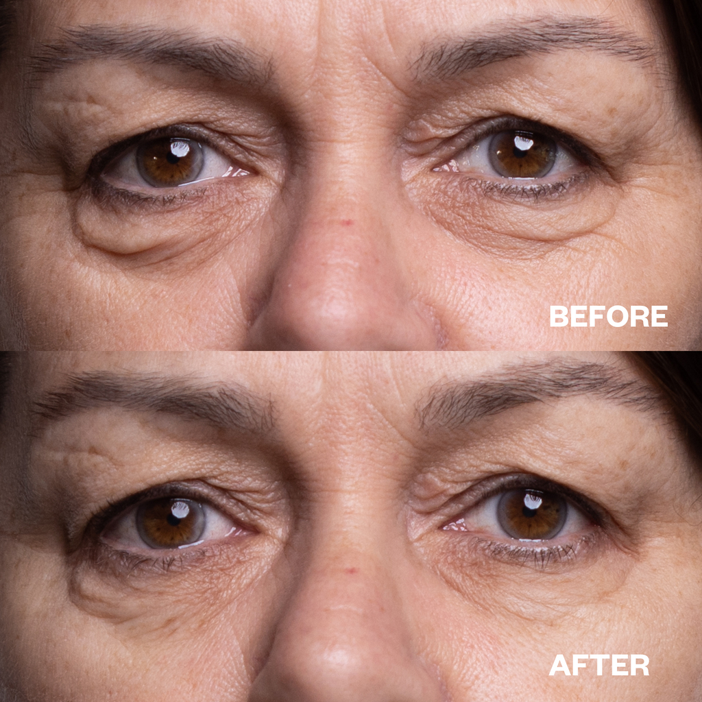 under eye wrinkles silicone eye pads before and after results