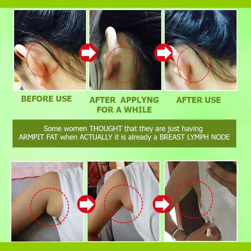 Herbal Lymph Clearing Patch (5pcs)