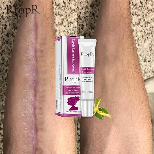 RTOPR SCAR REMOVER CREAM FOR STRETCH MARKS, ACNE AND MORE!