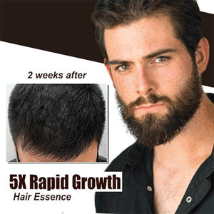 5X Rapid Growth Hair Essence