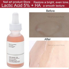 Blemishes Remove Acne Scars Serum