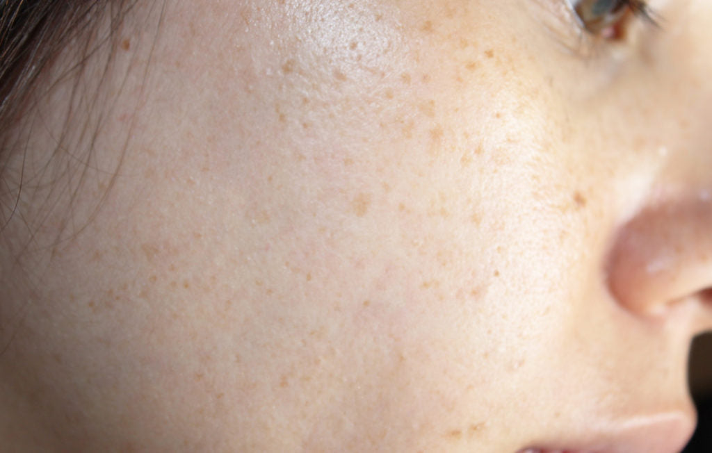 Pigmentation Cheek