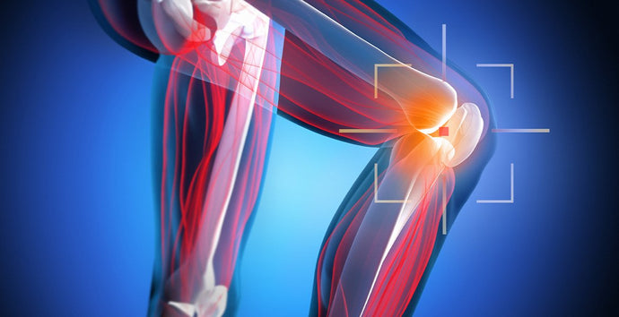 Guide to Meniscus Tear Recovery