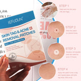 Skin Tag & Acne Removal Patches (108 Pcs)