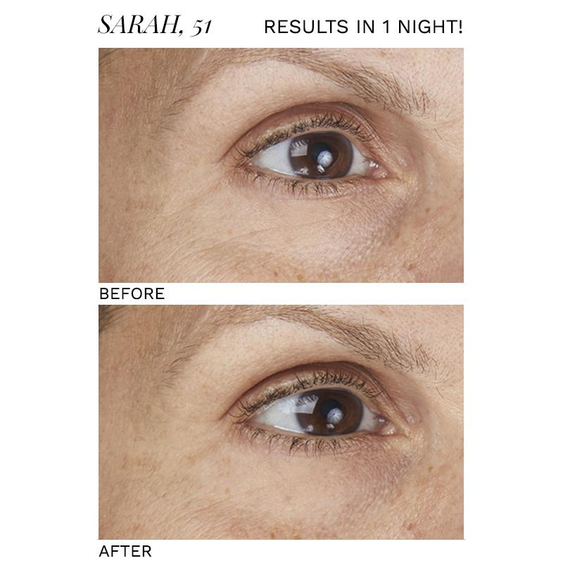 SIO Beauty- Eye + Smile LIft 2pk Skincare - Special SIO Beauty