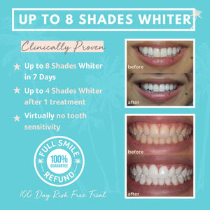 Teeth Whitening Kit - Professional Strength
