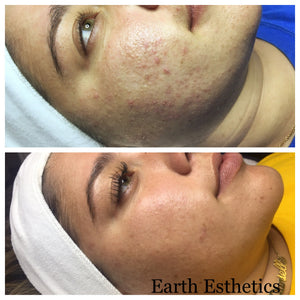 Before and after cystic acne