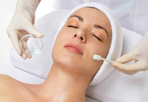 Chemical peel. Wrinkles. Acne. Hyperpigmentation. Uneven skin tone. Facial