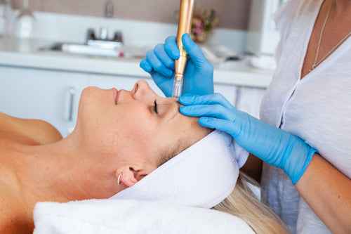 Micro dermabrasion. Nano pen. Acne. Fine lines. Wrinkles. Hyperpigmentation. Texture skin. Micro dermabrasion facial