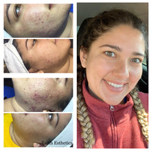 Load image into Gallery viewer, Before and after cystic acne. Acne results. Blackheads