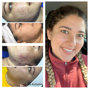 Before and after cystic acne. Acne results. Blackheads