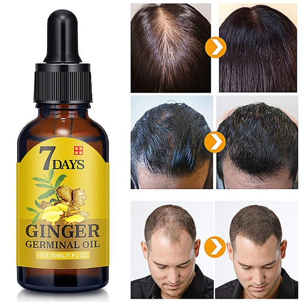 Hair Loss Treatment Effective Fast Growth Hair Care Virgin Expressions